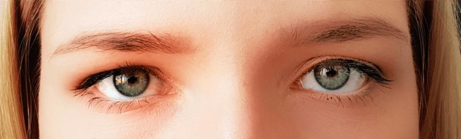 Tiefstehende Augenbrauen