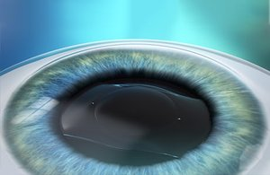 Darstellung einer Implantierbaren Kontaktlinse (ICL)